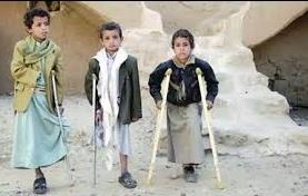 سقوط 18 شخص بينهم 10 أطفال و5 نساء خلال ثلاثة أشهر جراء الألغام التي زرعها الحوثيين