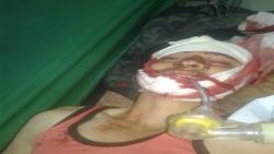 مقتل شاب برصاص مليشيا الحوثي بحبيش إب