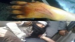 نجاة طفلة في إب من موت محقق بعد تعرضها لضرب مبرح