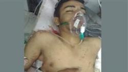 إب .. مقتل لاعب كرة قدم برصاص مسلحين جماعة الحوثي